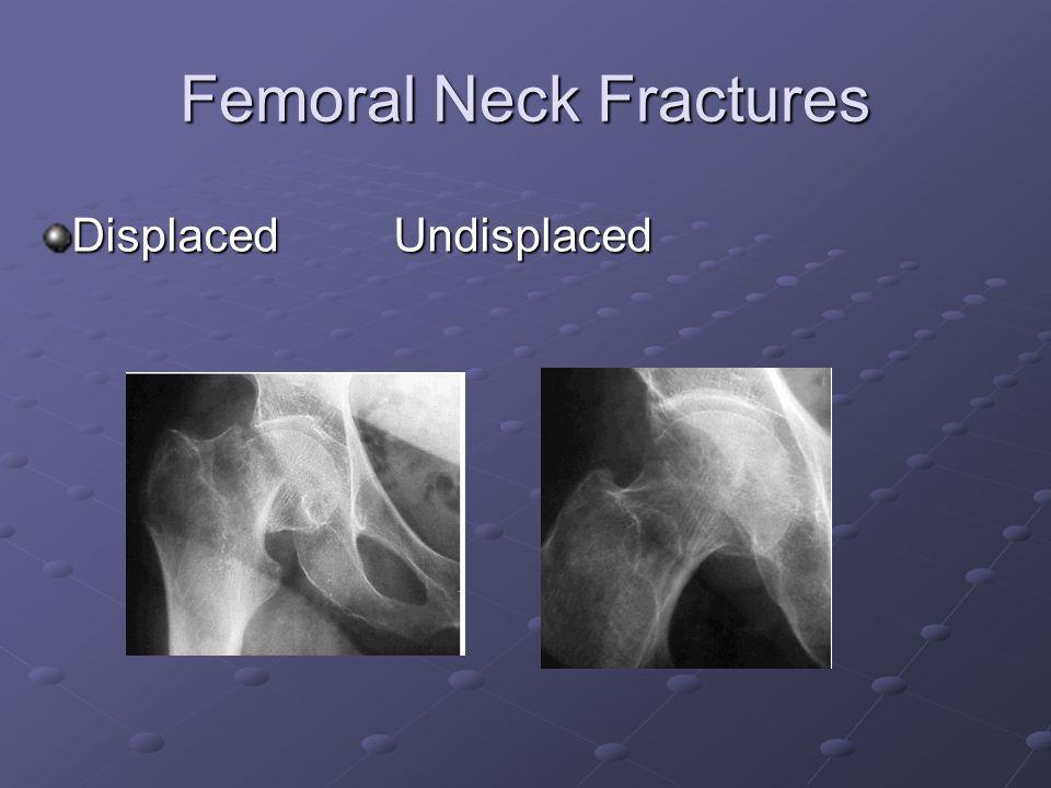 Femoral Neck Fractures Displaced Undisplaced