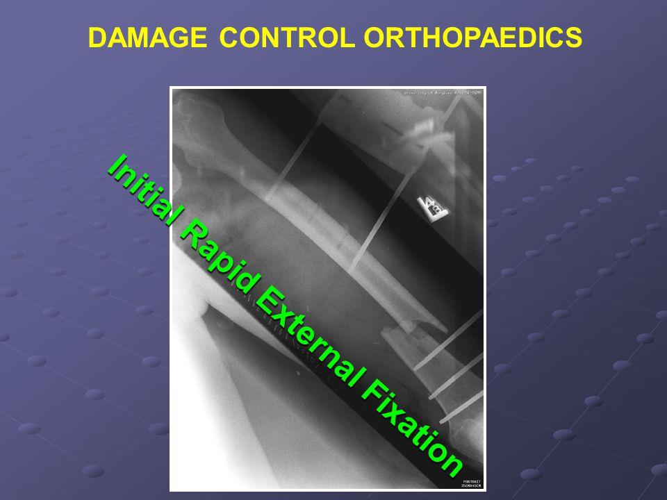 DAMAGE CONTROL ORTHOPAEDICS Initial Rapid External Fixation