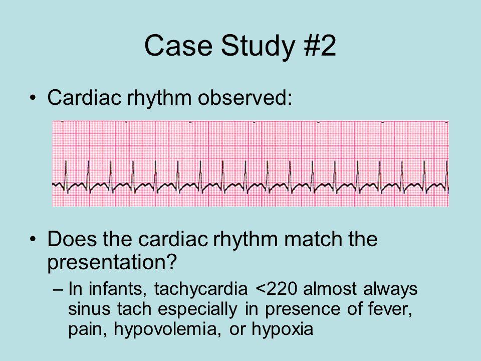Case Study #2 Cardiac rhythm observed: Does the cardiac rhythm match the presentation? –In infants, tachycardia <220 almost always sinus tach especial