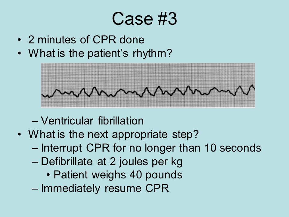 Case #3 2 minutes of CPR done What is the patient's rhythm? –Ventricular fibrillation What is the next appropriate step? –Interrupt CPR for no longer