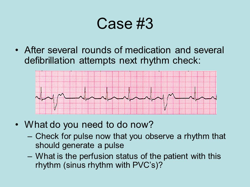 Case #3 After several rounds of medication and several defibrillation attempts next rhythm check: What do you need to do now? –Check for pulse now tha