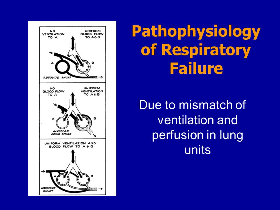 Pathophysiology of Respiratory Failure Due to mismatch of ventilation and perfusion in lung units