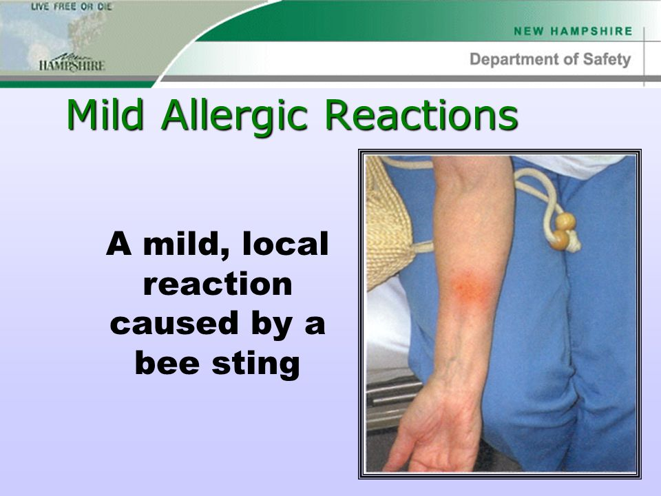 Mild Allergic Reactions A mild, local reaction caused by a bee sting