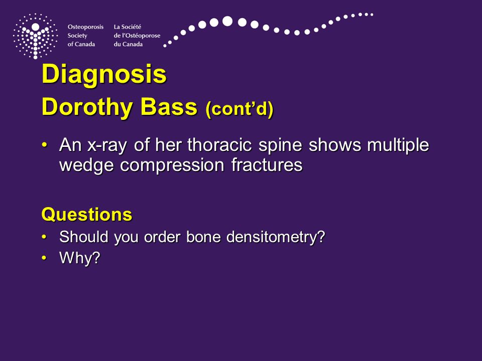 Diagnosis Dorothy Bass (cont'd) An x-ray of her thoracic spine shows multiple wedge compression fracturesAn x-ray of her thoracic spine shows multiple wedge compression fracturesQuestions Should you order bone densitometry?Should you order bone densitometry.