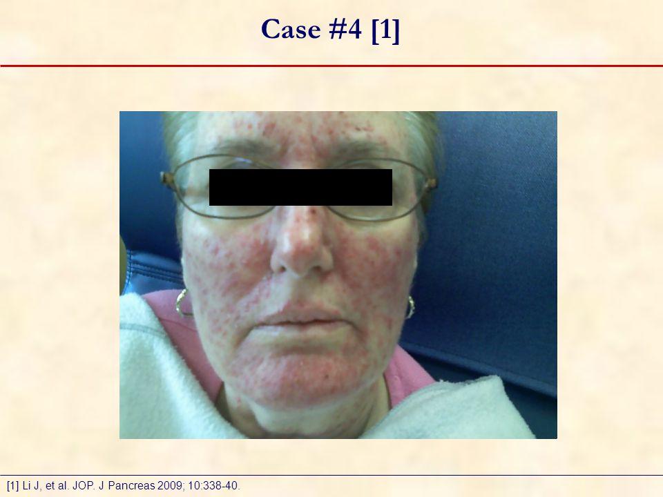 Case #4 [1] [1] Li J, et al. JOP. J Pancreas 2009; 10:338-40.