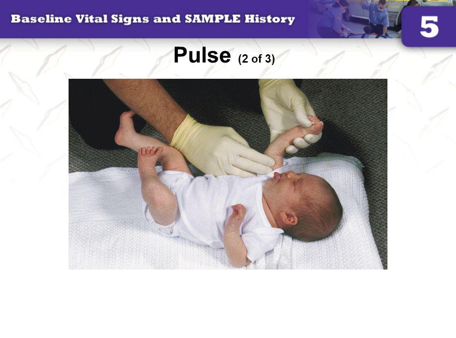 Pulse (2 of 3)