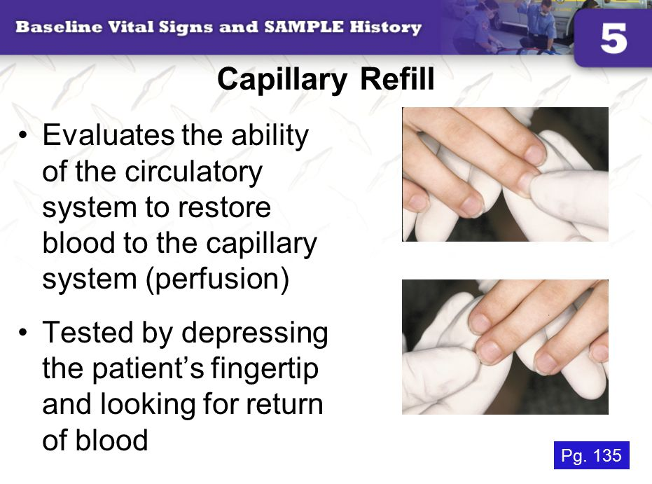 Capillary Refill Evaluates the ability of the circulatory system to restore blood to the capillary system (perfusion) Tested by depressing the patient's fingertip and looking for return of blood Pg.