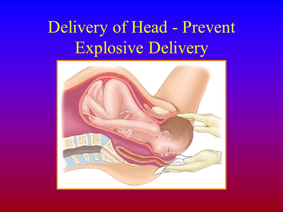 Delivery of Head - Prevent Explosive Delivery