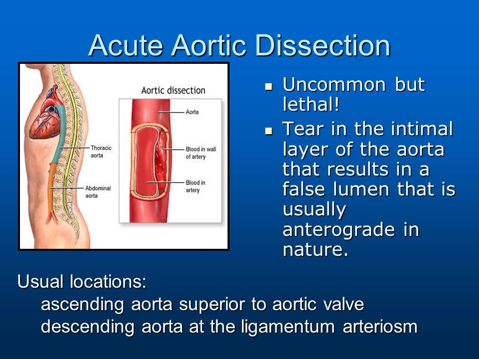 Acute Aortic Dissection Uncommon but lethal! Uncommon but lethal! Tear in the intimal layer of the aorta that results in a false lumen that is usually