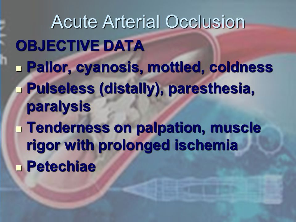 Acute Arterial Occlusion OBJECTIVE DATA Pallor, cyanosis, mottled, coldness Pallor, cyanosis, mottled, coldness Pulseless (distally), paresthesia, par