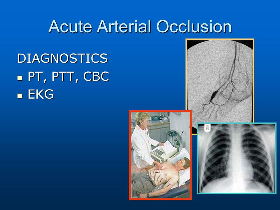 Acute Arterial Occlusion DIAGNOSTICS PT, PTT, CBC PT, PTT, CBC EKG EKG