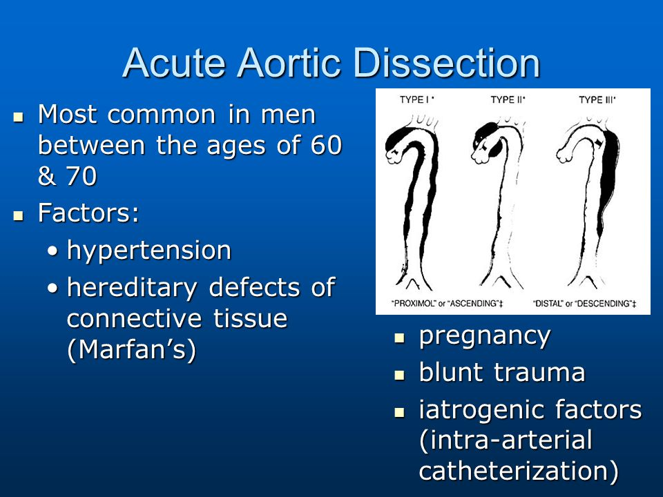 Acute Aortic Dissection Most common in men between the ages of 60 & 70 Most common in men between the ages of 60 & 70 Factors: Factors: hypertensionhy