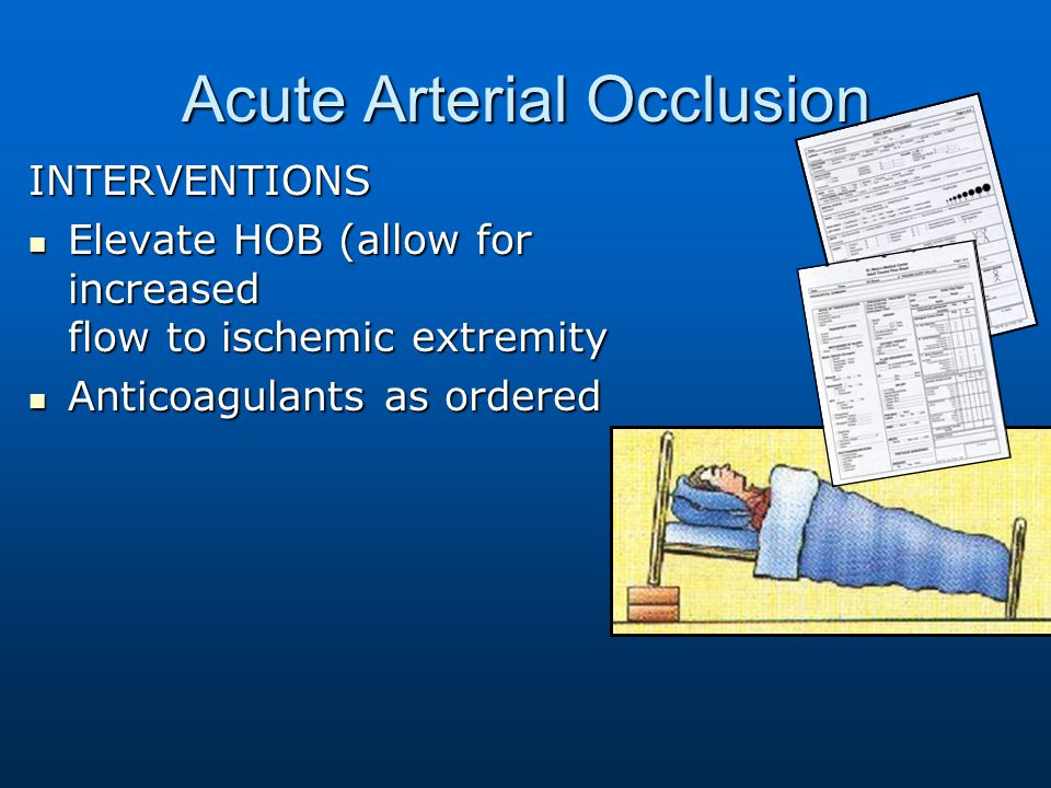 Acute Arterial Occlusion INTERVENTIONS Elevate HOB (allow for increased flow to ischemic extremity Elevate HOB (allow for increased flow to ischemic e