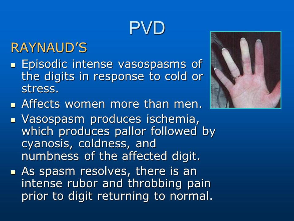 PVD RAYNAUD'S Episodic intense vasospasms of the digits in response to cold or stress. Episodic intense vasospasms of the digits in response to cold o