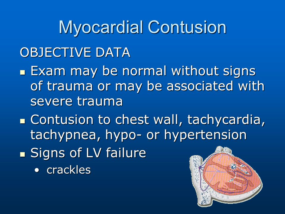 Myocardial Contusion OBJECTIVE DATA Exam may be normal without signs of trauma or may be associated with severe trauma Exam may be normal without sign