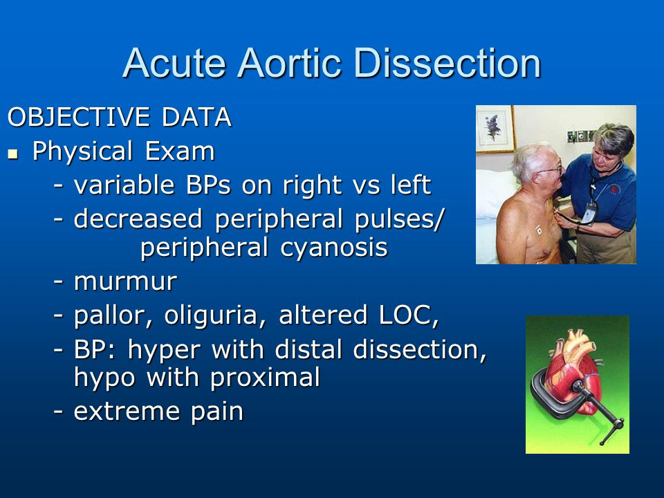 Acute Aortic Dissection OBJECTIVE DATA Physical Exam Physical Exam - variable BPs on right vs left - variable BPs on right vs left - decreased periphe