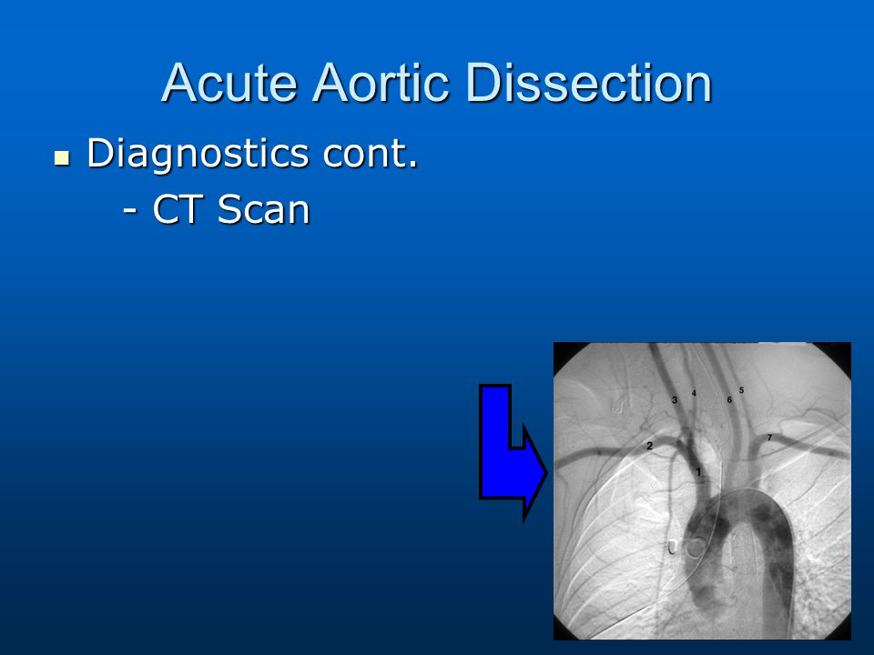 Acute Aortic Dissection Diagnostics cont. Diagnostics cont. - CT Scan - CT Scan
