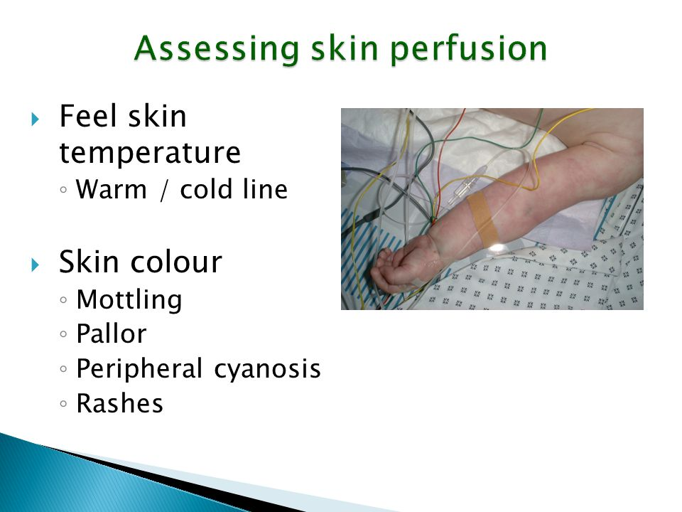 Assessing skin perfusion  Feel skin temperature ◦ Warm / cold line  Skin colour ◦ Mottling ◦ Pallor ◦ Peripheral cyanosis ◦ Rashes