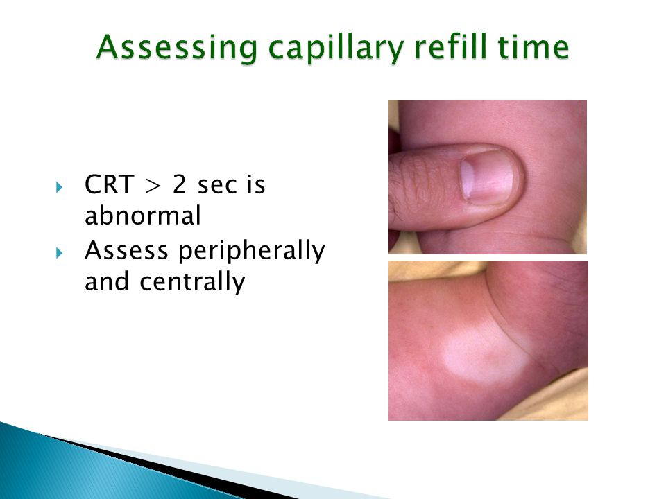 Assessing capillary refill time  CRT > 2 sec is abnormal  Assess peripherally and centrally