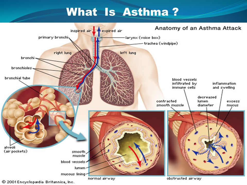 Addition to other controller medications has been shown to improve control of allergic asthma (Evidence A) ANTI-IgE TREATMENT (Omalizumab)