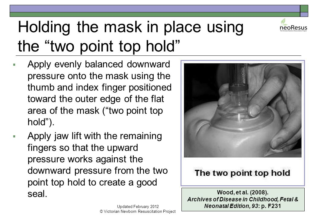 Holding the mask in place using the two point top hold  Apply evenly balanced downward pressure onto the mask using the thumb and index finger positioned toward the outer edge of the flat area of the mask ( two point top hold ).