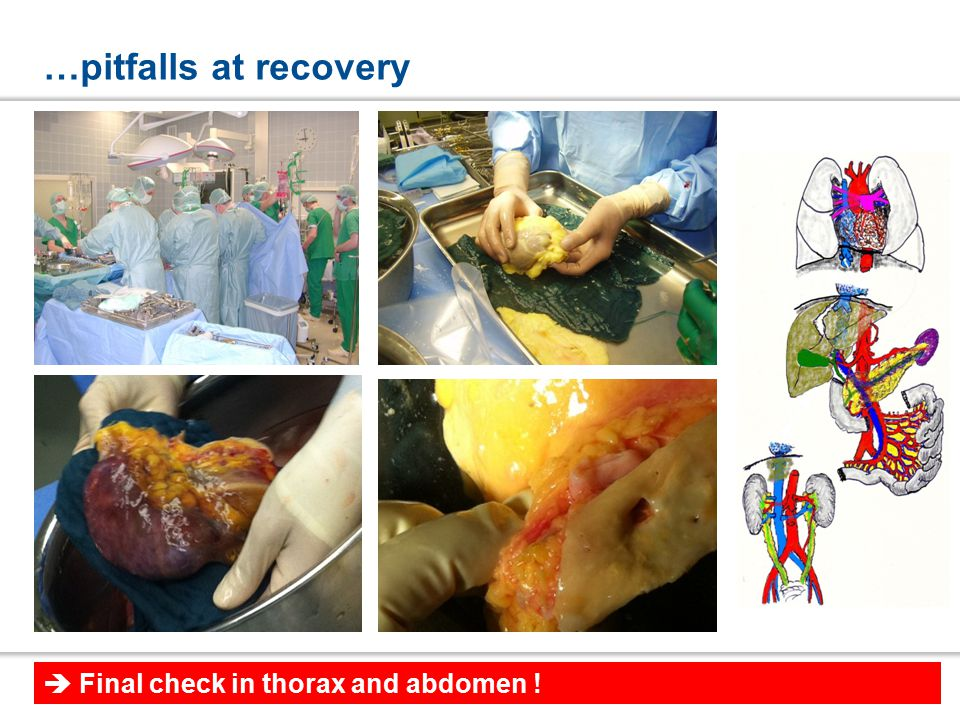 …pitfalls at recovery  Final check in thorax and abdomen !