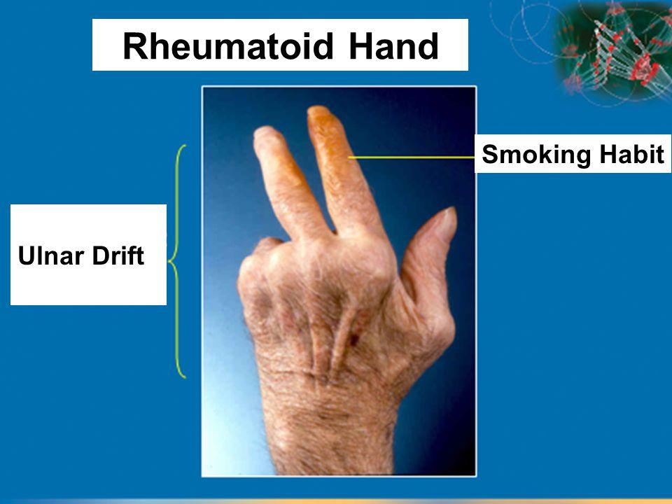 Smoking Habit Ulnar Drift Rheumatoid Hand
