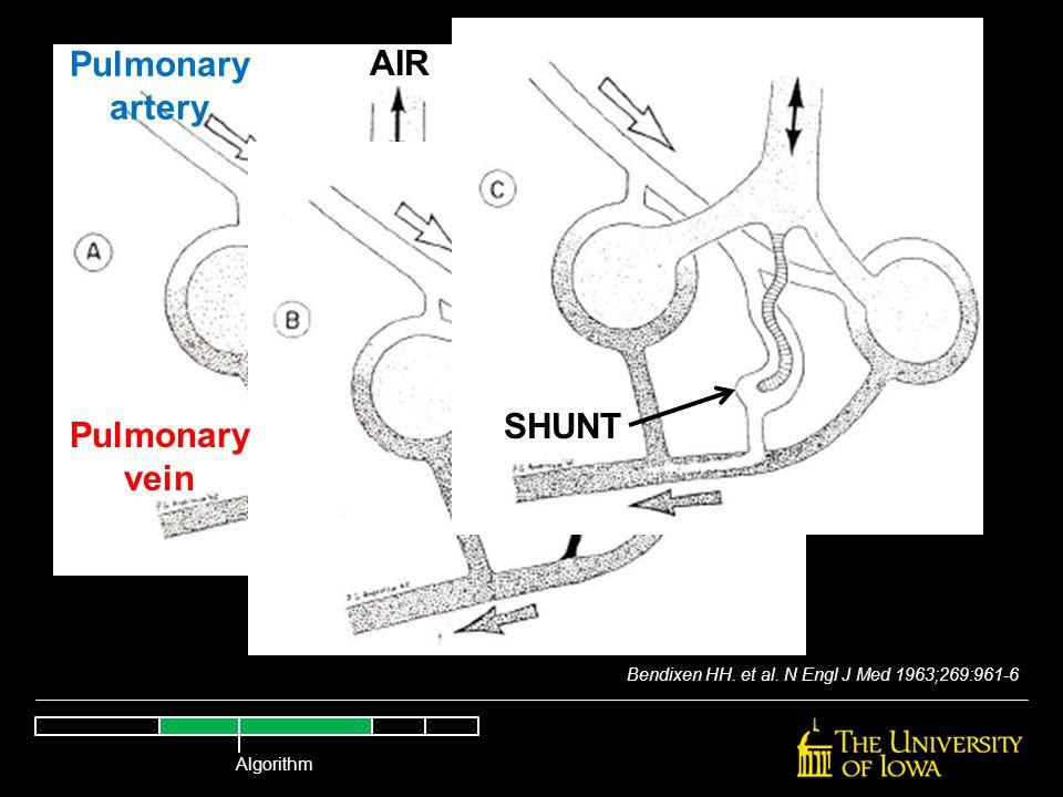 Bendixen HH. et al. N Engl J Med 1963;269:961-6 AIR Pulmonary artery Pulmonary vein SHUNT Algorithm