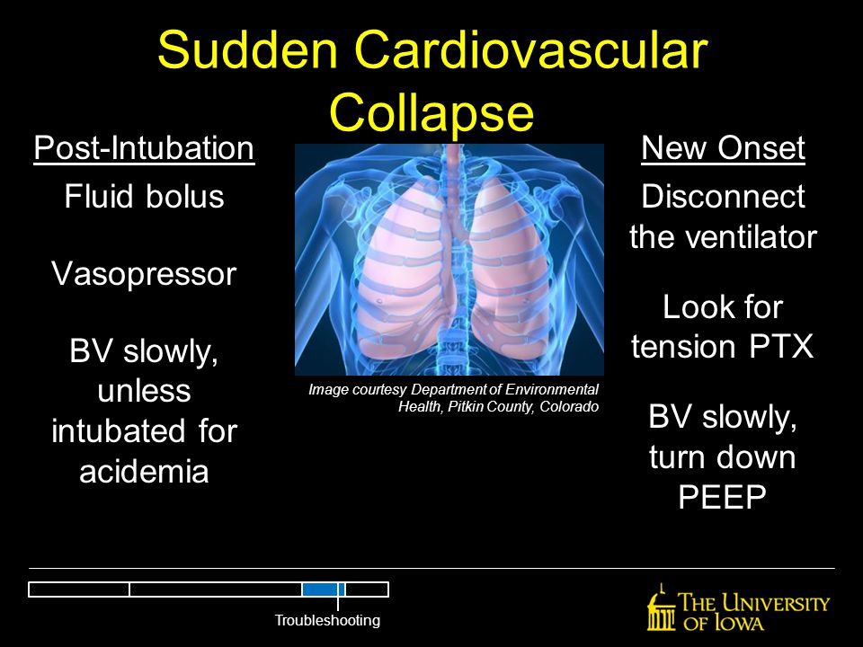 Sudden Cardiovascular Collapse Post-Intubation Fluid bolus Vasopressor BV slowly, unless intubated for acidemia New Onset Disconnect the ventilator Lo
