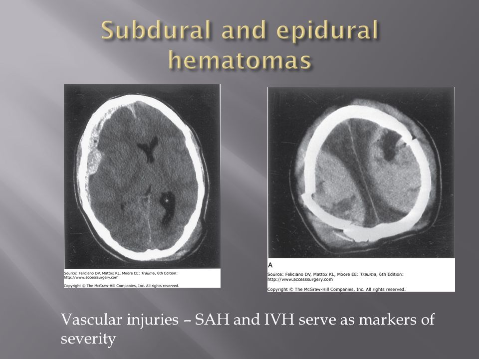 Vascular injuries – SAH and IVH serve as markers of severity