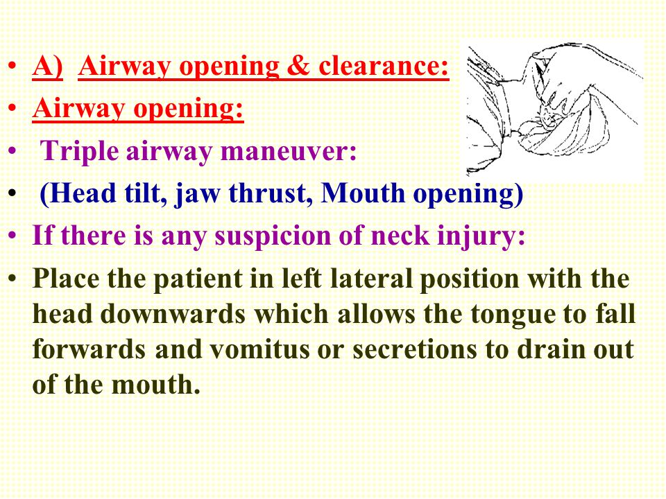 A) Airway opening & clearance: Airway opening: Triple airway maneuver: (Head tilt, jaw thrust, Mouth opening) If there is any suspicion of neck injury