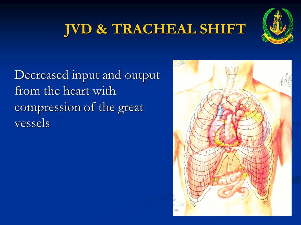 LATE S/S OF TENSION PNEUMOTHORAX Jugular Venous Distension (JVD) Jugular Venous Distension (JVD) Tracheal Deviation Tracheal Deviation Narrowing pulse pressure Narrowing pulse pressure Signs of decompensating shock Signs of decompensating shock