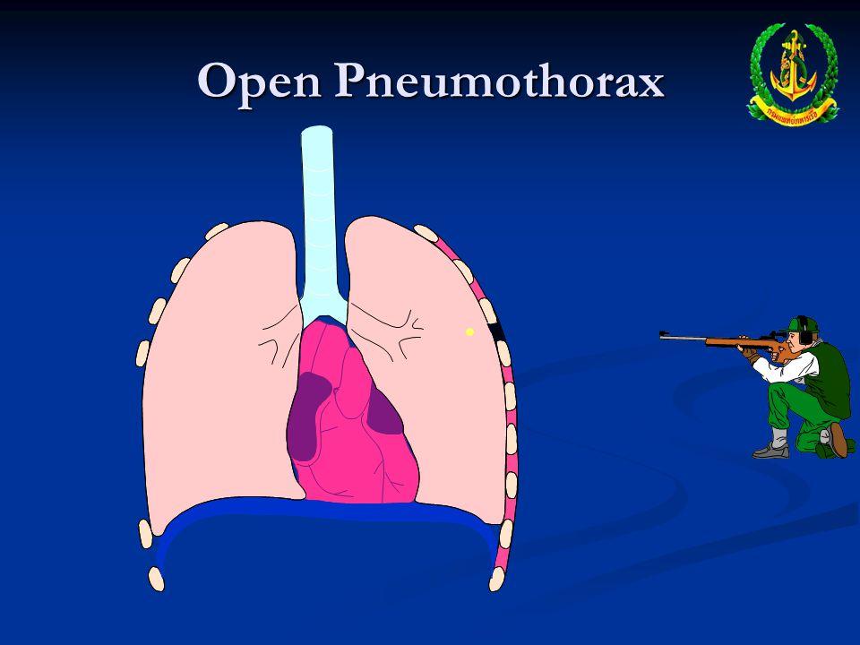 Open Pneumothorax Dyspnea Dyspnea Subcutaneous Emphysema Subcutaneous Emphysema Decreased lung sounds on affected side Decreased lung sounds on affect