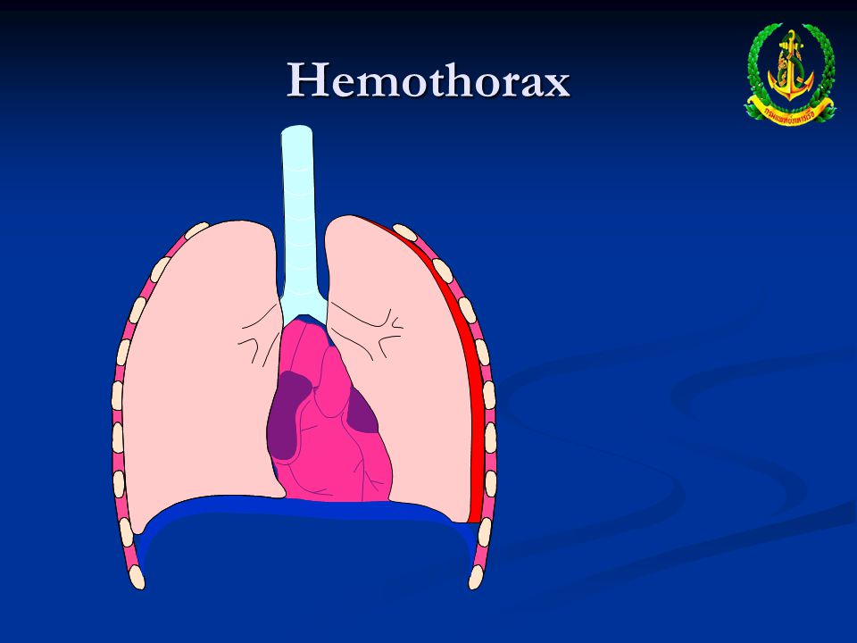 Hemothorax Occurs when pleural space fills with blood Occurs when pleural space fills with blood Usually occurs due to lacerated blood vessel in thora