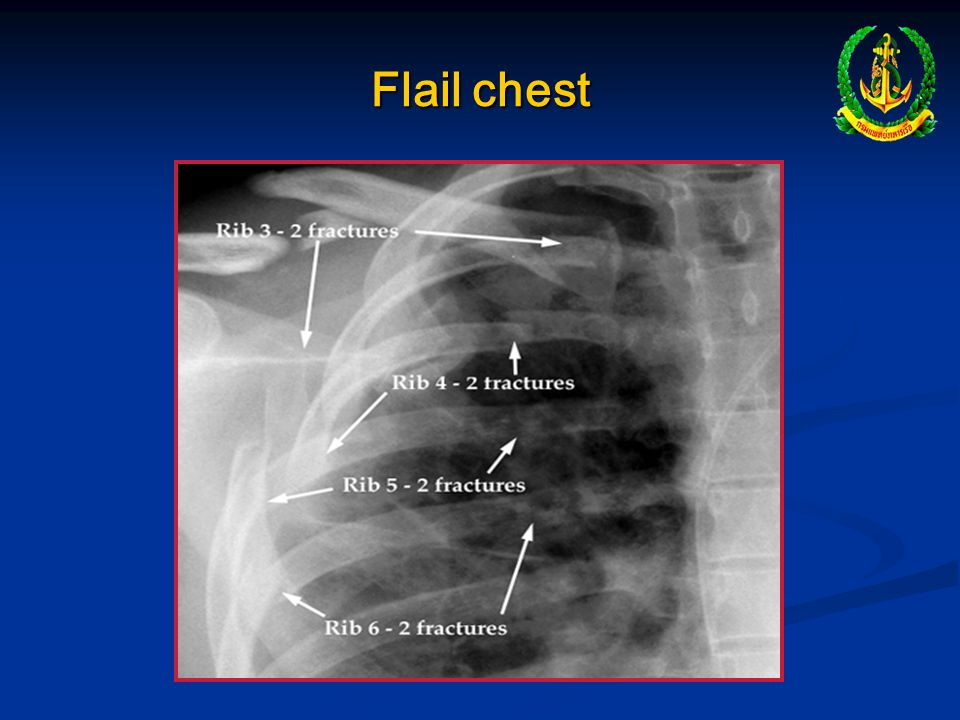 """Flail chest """" Free-floating"""" chest segment, usually from multiple ribs fractures Pain and restricted movement Paradoxicalmovement of chest wall with r"""