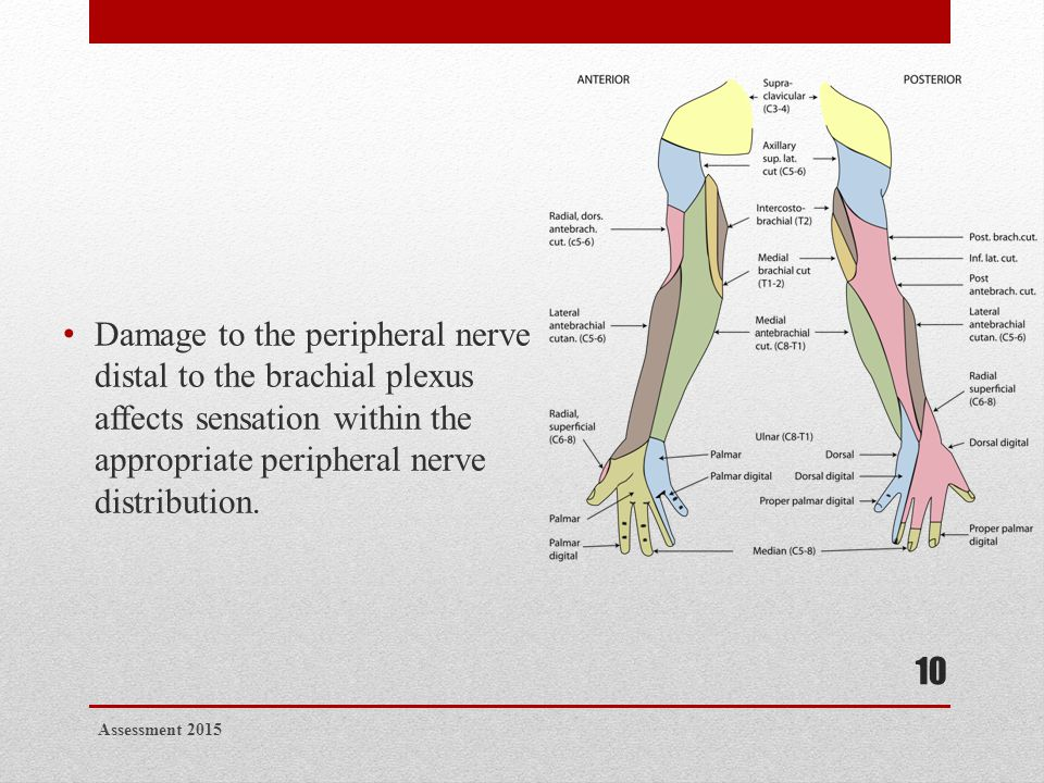 Damage to the peripheral nerve distal to the brachial plexus affects sensation within the appropriate peripheral nerve distribution. Assessment 2015 1