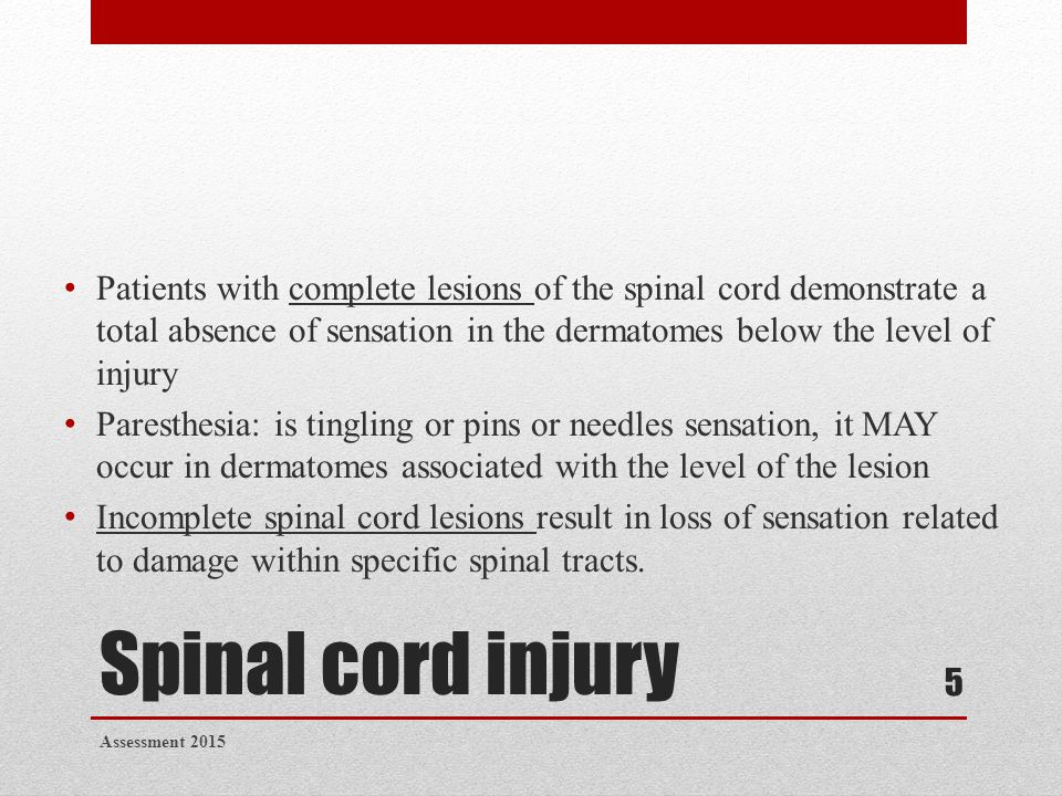 Spinal cord injury Patients with complete lesions of the spinal cord demonstrate a total absence of sensation in the dermatomes below the level of inj