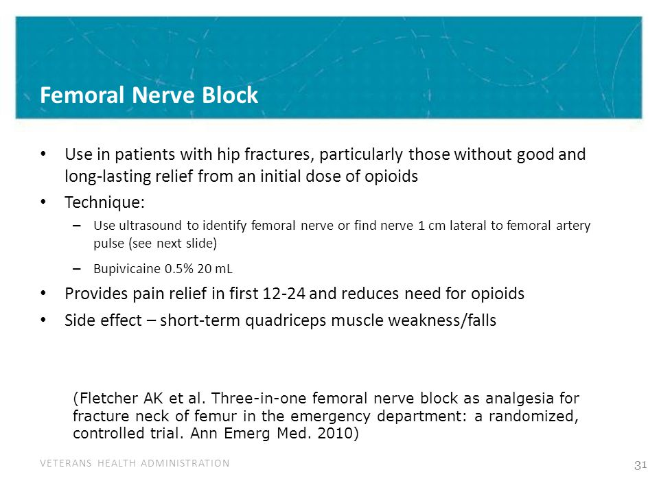 VETERANS HEALTH ADMINISTRATION Femoral Nerve Block Use in patients with hip fractures, particularly those without good and long-lasting relief from an