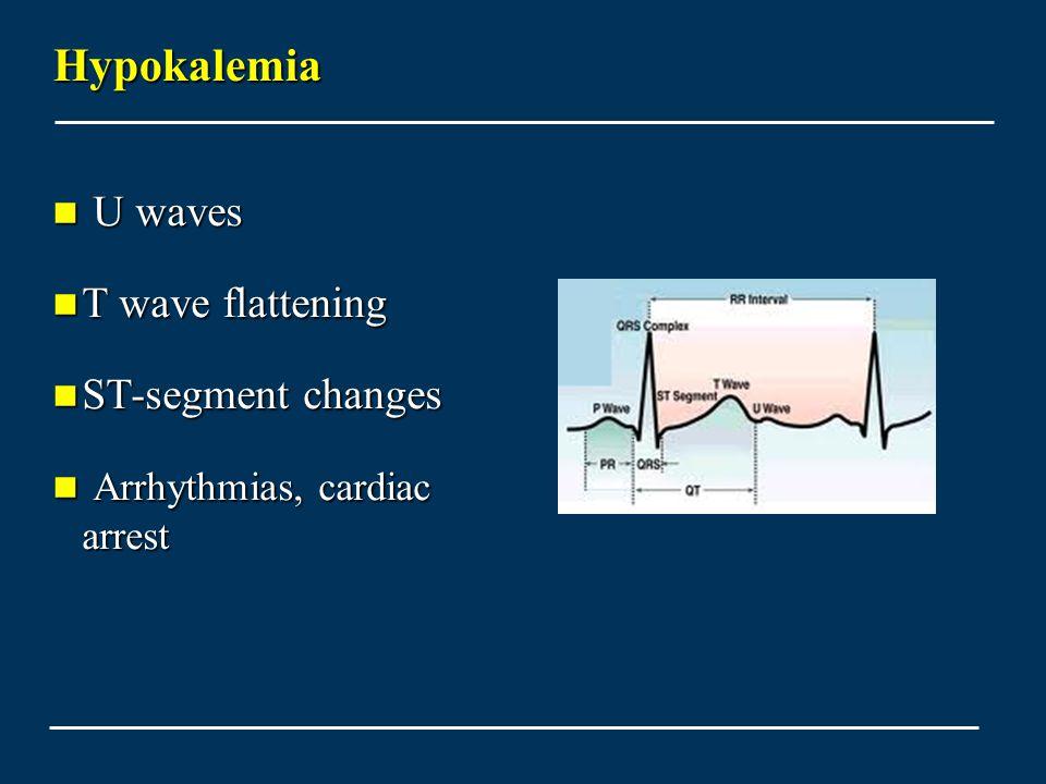 Hypokalemia U waves U waves T wave flattening T wave flattening ST-segment changes ST-segment changes Arrhythmias, cardiac arrest Arrhythmias, cardiac arrest