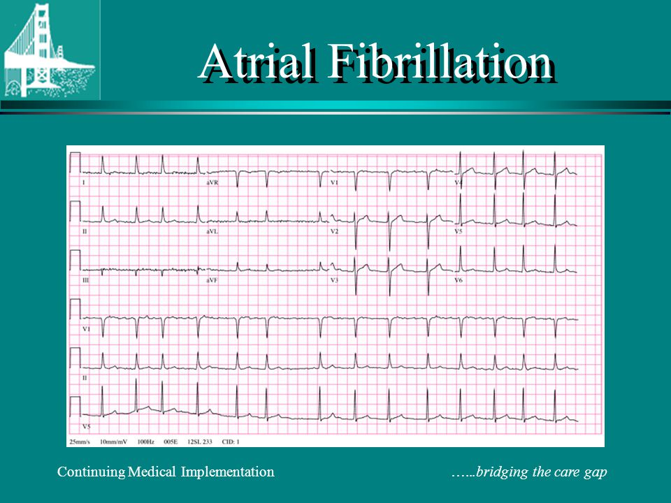 Continuing Medical Implementation …...bridging the care gap Atrial Fibrillation Rate Control (IV or PO) Metoprolol: 5mg IV q5min X 3  5-10 mg IV q6h PO 25-100 mg BID Verapamil: 5-15 mg IV  0.05-0.2 mg/min IV PO 80-120 mg TID Diltiazem: 0.25 mg/kg IV over 2 minutes  5-15 mg/hr IV PO 30-90 mg QID Digitalis: Use as adjunct for rate control 0.25 mg PO or IV q4h X 3 doses  0.125-0.5d mg/d* *Adjust dose based on body size and renal function