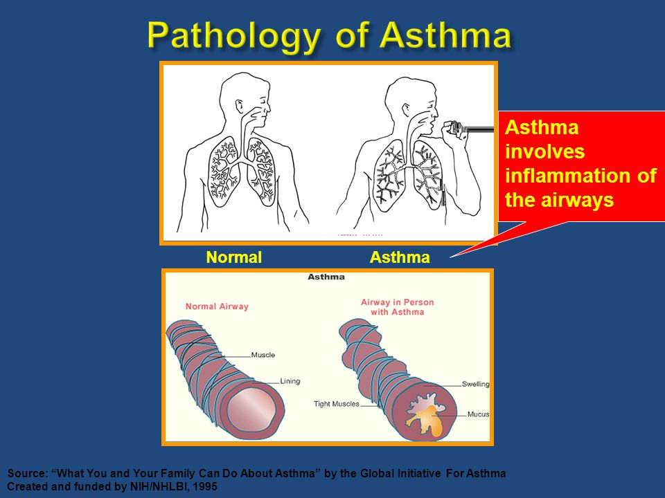 "Pathology of Asthma Source: ""What You and Your Family Can Do About Asthma"" by the Global Initiative For Asthma Created and funded by NIH/NHLBI, 1995 N"