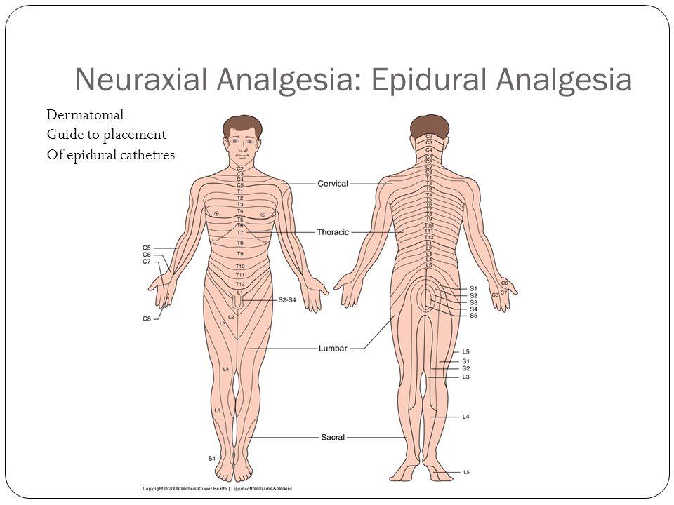 Neuraxial Analgesia: Epidural Analgesia Dermatomal Guide to placement Of epidural cathetres