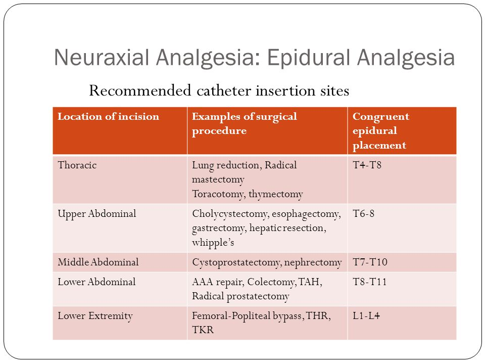 Neuraxial Analgesia: Epidural Analgesia Location of incisionExamples of surgical procedure Congruent epidural placement ThoracicLung reduction, Radica