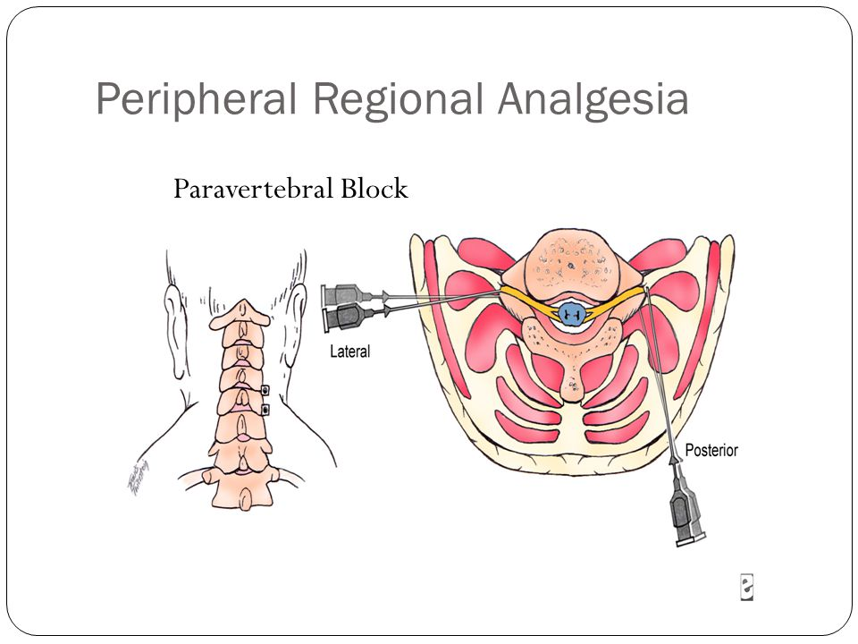 Peripheral Regional Analgesia Paravertebral Block
