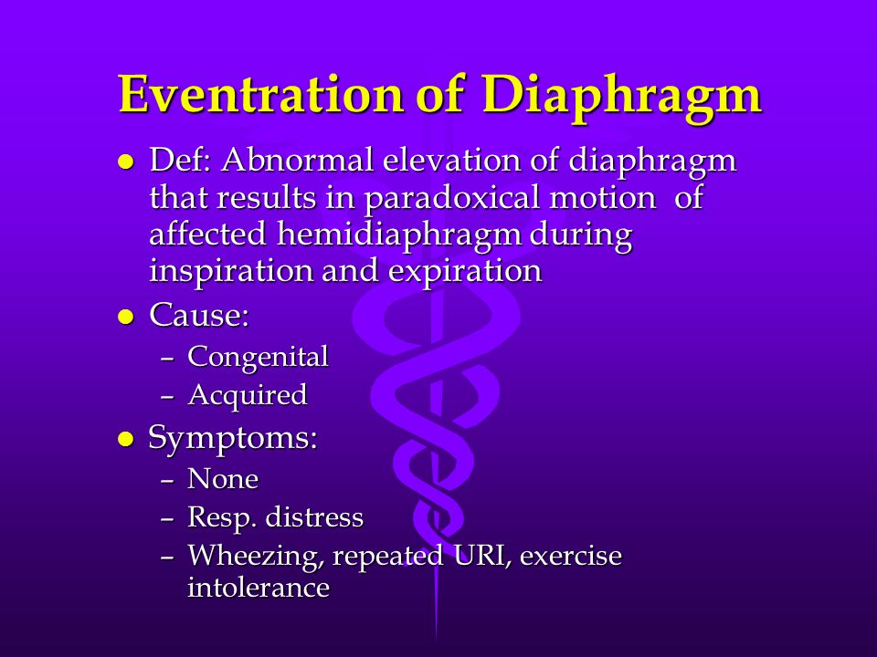 Eventration of Diaphragm l Def: Abnormal elevation of diaphragm that results in paradoxical motion of affected hemidiaphragm during inspiration and expiration l Cause: –Congenital –Acquired l Symptoms: –None –Resp.