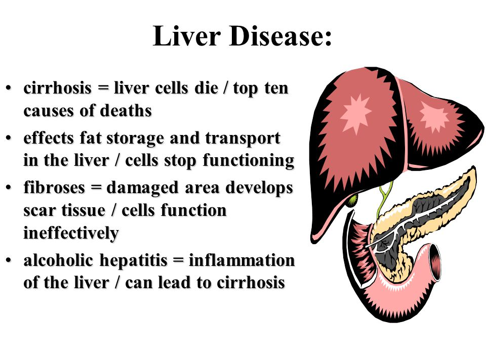 Liver Disease: cirrhosis = liver cells die / top ten causes of deathscirrhosis = liver cells die / top ten causes of deaths effects fat storage and transport in the liver / cells stop functioningeffects fat storage and transport in the liver / cells stop functioning fibroses = damaged area develops scar tissue / cells function ineffectivelyfibroses = damaged area develops scar tissue / cells function ineffectively alcoholic hepatitis = inflammation of the liver / can lead to cirrhosisalcoholic hepatitis = inflammation of the liver / can lead to cirrhosis