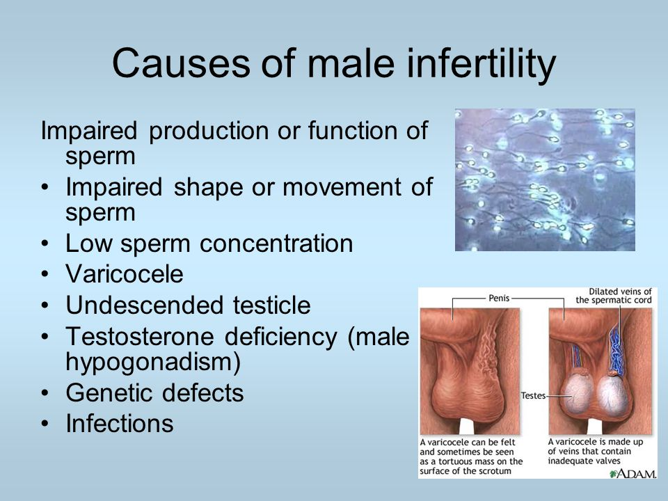 Causes of male infertility Impaired production or function of sperm Impaired shape or movement of sperm Low sperm concentration Varicocele Undescended