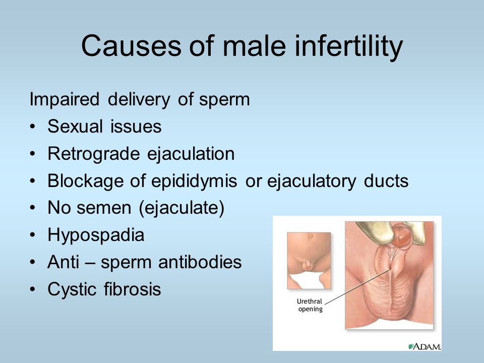 Causes of male infertility Impaired delivery of sperm Sexual issues Retrograde ejaculation Blockage of epididymis or ejaculatory ducts No semen (ejacu