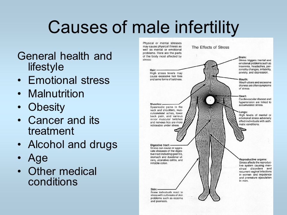 Causes of male infertility General health and lifestyle Emotional stress Malnutrition Obesity Cancer and its treatment Alcohol and drugs Age Other med