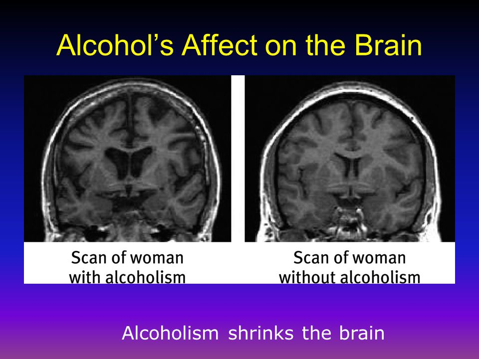 Alcohol's Affect on the Brain Alcoholism shrinks the brain